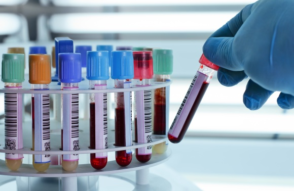 Blood tubes for centrifuging
